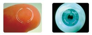keratoconus-intacs-implants