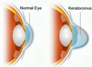Keratoconus vs Normal Eye