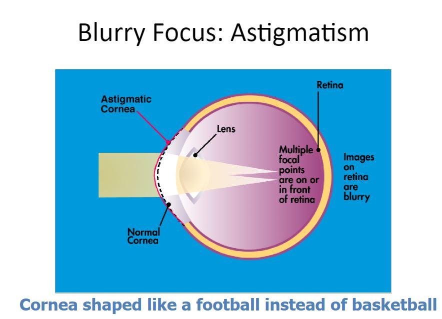 Eye with astigmatism