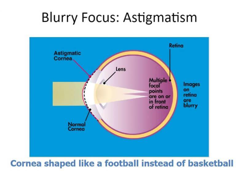 Chart Illustrfating How Astigmatism Affects an Eye