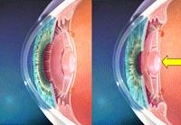 Multifocal Lens Implant
